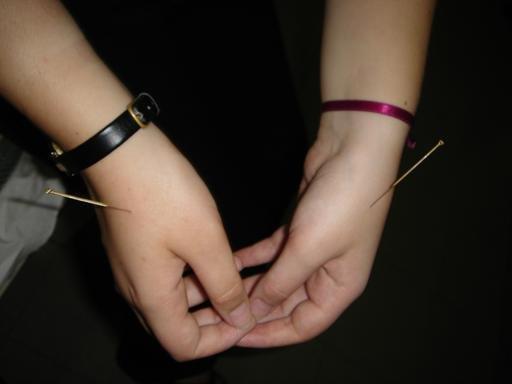 acupunture3.jpg